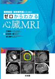 ゼロからわかる心臓MRI